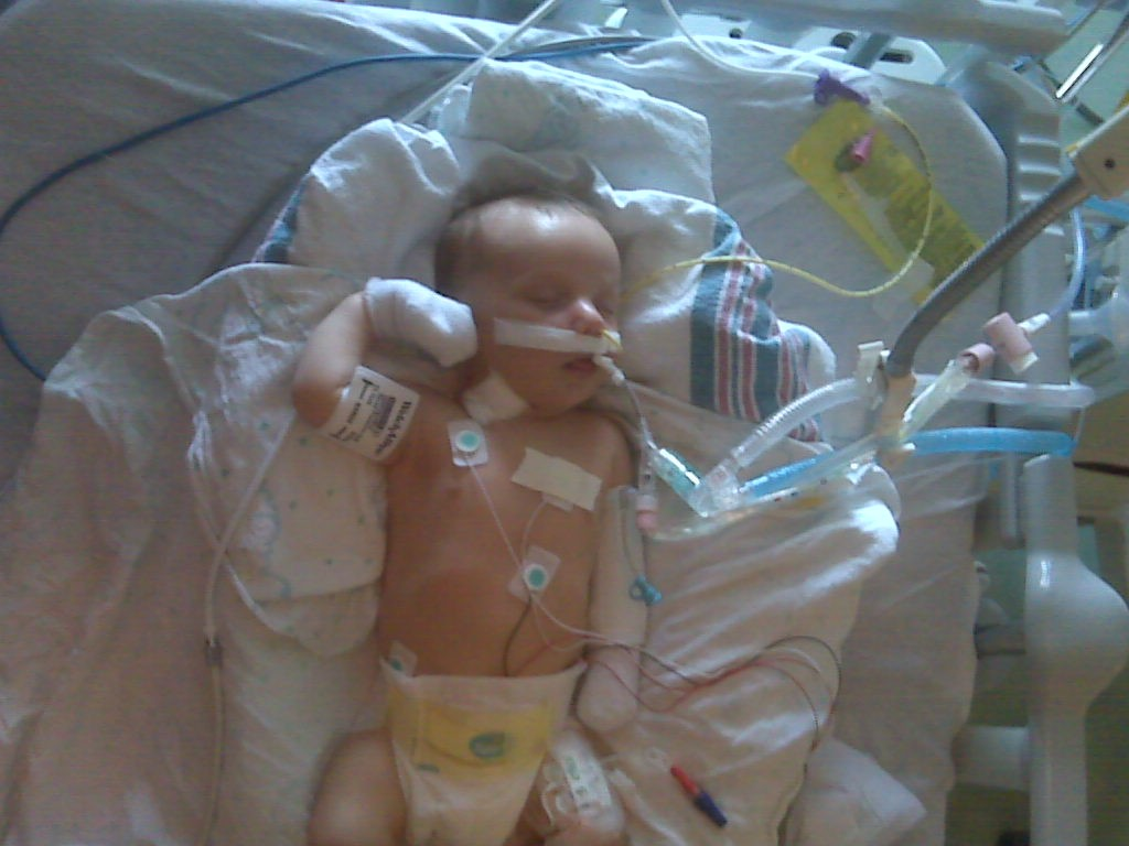 Two months old. On life support. Waiting on a new heart.
